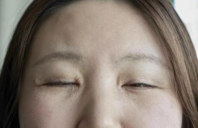 Giấu chồng đi thẩm mỹ để níu kéo hôn nhân, số phận người phụ nữ cuồng mắt 2 mí đảo lộn hoàn toàn sau cuộc phẫu thuật hỏng - ảnh 7