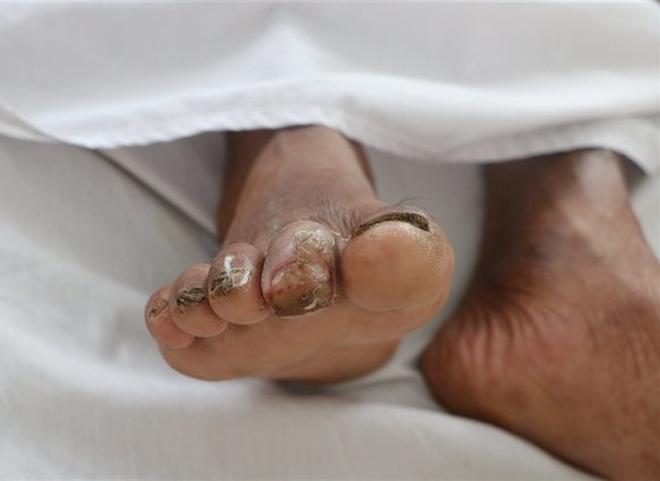 Người đàn ông sốt, ho, khó thở suốt 2 tháng nhiễm vi khuẩn ăn thịt người - ảnh 1