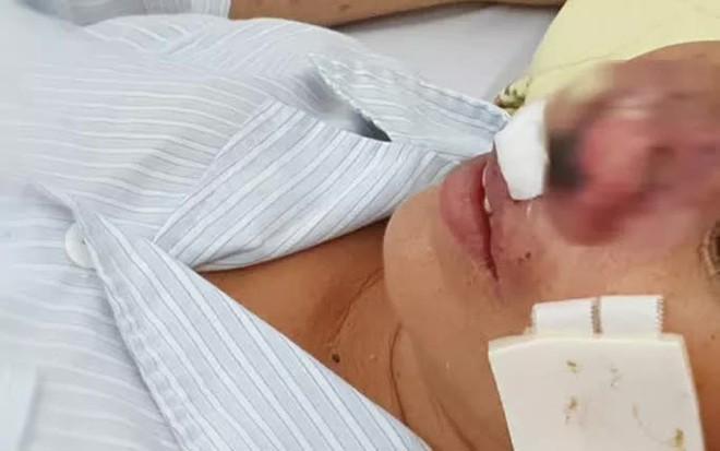 Người đàn ông sốt, ho, khó thở suốt 2 tháng nhiễm vi khuẩn ăn thịt người - ảnh 2