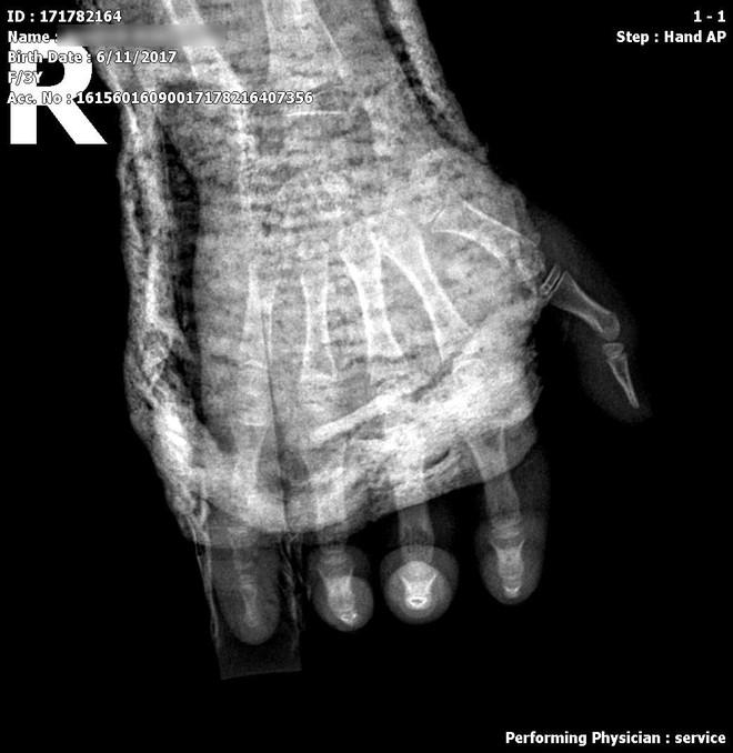 Bị tủ đè vào tay gãy xương, bé 4 tuổi phải nhập viện vì hoại tử da do đắp lá - ảnh 1