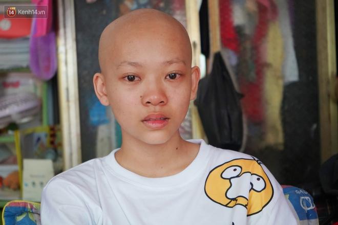 Đang học dở lớp 8, cô bé 14 tuổi phát hiện mắc bệnh ung thư xương, cha mẹ nghèo khóc cạn nước mắt tìm cách cứu chữa - Ảnh 2.