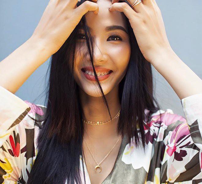 Đâu phải ai sinh ra cũng đẹp, đến Khánh Vân cũng phải chịu khó niềng răng mới hoàn hảo như bây giờ - ảnh 5