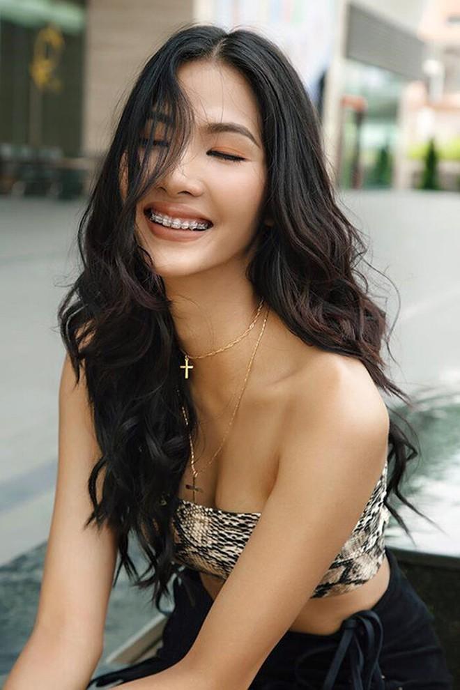 Đâu phải ai sinh ra cũng đẹp, đến Khánh Vân cũng phải chịu khó niềng răng mới hoàn hảo như bây giờ - ảnh 4