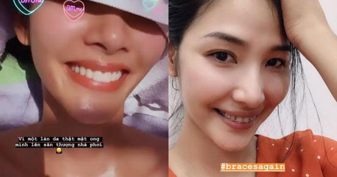 Đâu phải ai sinh ra cũng đẹp, đến Khánh Vân cũng phải chịu khó niềng răng mới hoàn hảo như bây giờ - ảnh 6