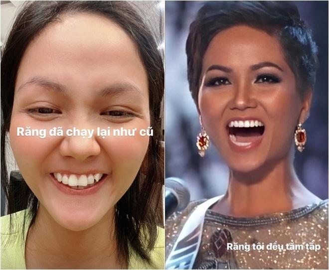 Đâu phải ai sinh ra cũng đẹp, đến Khánh Vân cũng phải chịu khó niềng răng mới hoàn hảo như bây giờ - ảnh 7