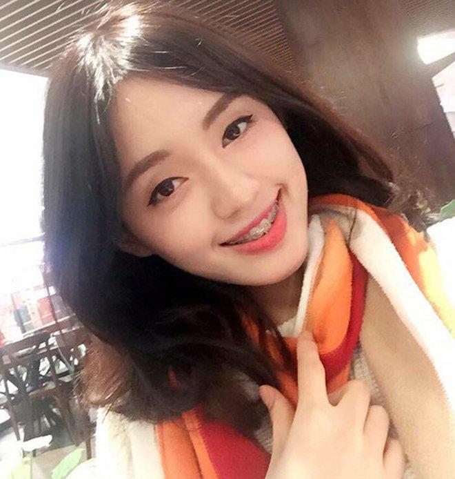 Đâu phải ai sinh ra cũng đẹp, đến Khánh Vân cũng phải chịu khó niềng răng mới hoàn hảo như bây giờ - ảnh 8
