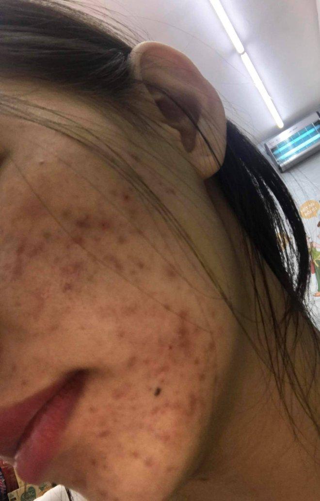 Tưởng như cả thanh xuân bị hủy hoại vì kem trộn, gái xinh thay đổi ngoạn mục sau một năm khi kiên trì skincare bài bản - ảnh 1