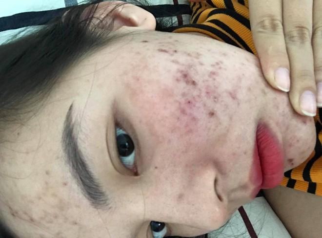 Tưởng như cả thanh xuân bị hủy hoại vì kem trộn, gái xinh thay đổi ngoạn mục sau một năm khi kiên trì skincare bài bản - ảnh 2