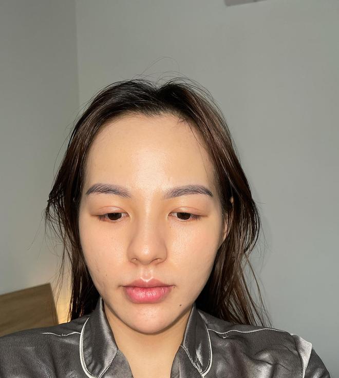 Tưởng như cả thanh xuân bị hủy hoại vì kem trộn, gái xinh thay đổi ngoạn mục sau một năm khi kiên trì skincare bài bản - ảnh 8