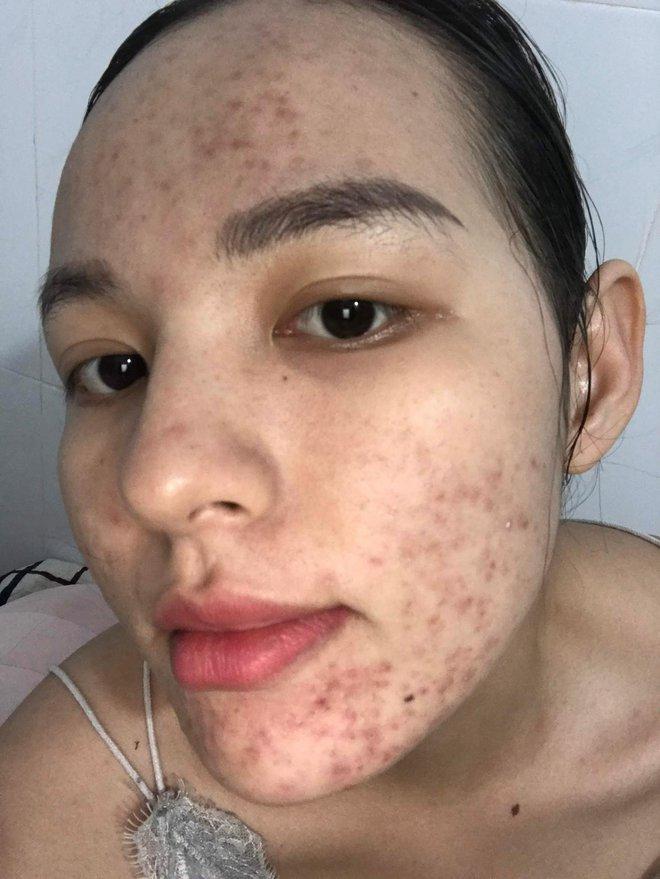 Tưởng như cả thanh xuân bị hủy hoại vì kem trộn, gái xinh thay đổi ngoạn mục sau một năm khi kiên trì skincare bài bản - ảnh 5
