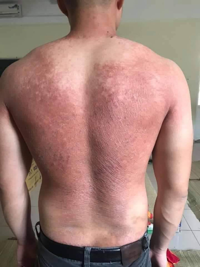 Hình ảnh bác sĩ nơi tâm dịch Bắc Giang khiến nhiều người xót xa: Phía sau lớp áo bảo hộ là tấm lưng cháy nắng phồng rộp - Ảnh 2.