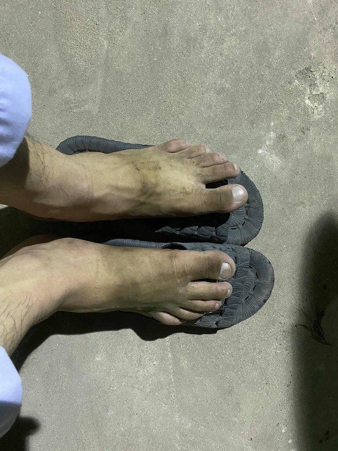 """Nam sinh 20 tuổi ngất xỉu khi lấy mẫu xét nghiệm trong thời tiết 40 độ ở Bắc Giang: """"Mình ngồi xuống định nghỉ một lúc thì sau đó không biết gì nữa..."""" - Ảnh 3."""
