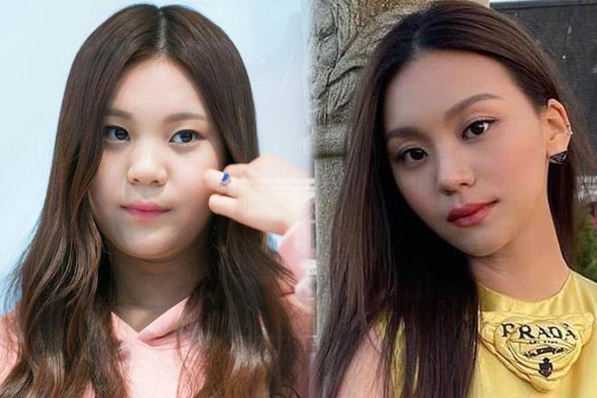 Nữ idol từng bị chê xấu nhất lịch sử Kpop nay đã thăng hạng visual ngoạn mục chỉ nhờ... đổi dáng lông mày - ảnh 1