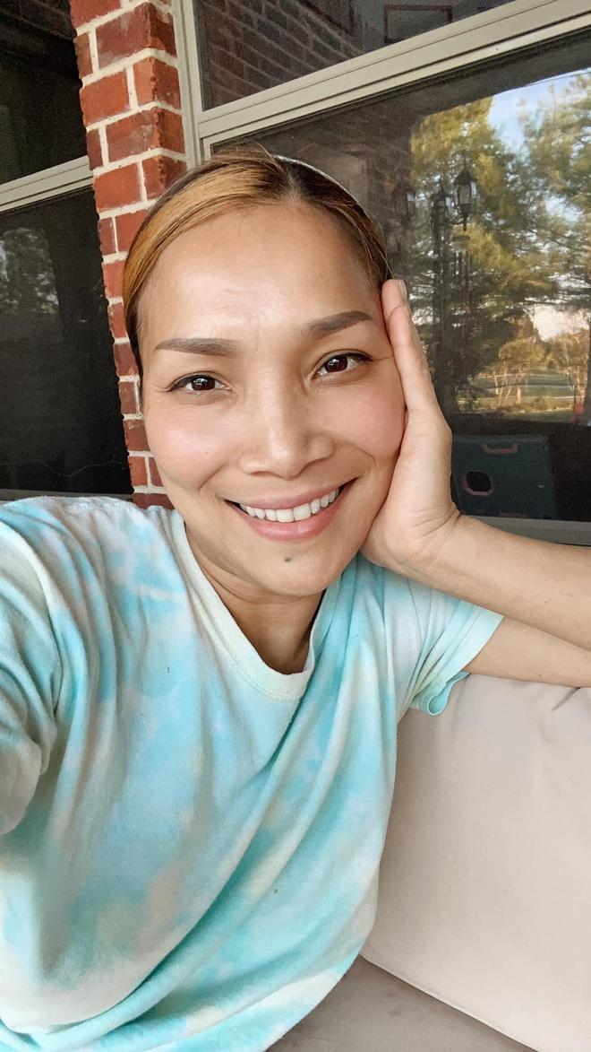 Cận cảnh gương mặt Hồng Ngọc sau 1 năm bị bỏng nặng - ảnh 1