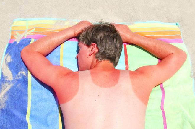 Những mẹo chữa cháy nắng nguy hiểm mà bạn không bao giờ nên đu theo, từ dùng nước súc miệng đến kem chua - ảnh 4