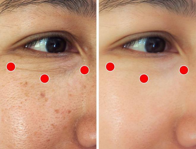 Bài tập 1 phút của người Nhật để ngăn ngừa và loại bỏ nếp nhăn quanh mắt cực hiệu quả - ảnh 3