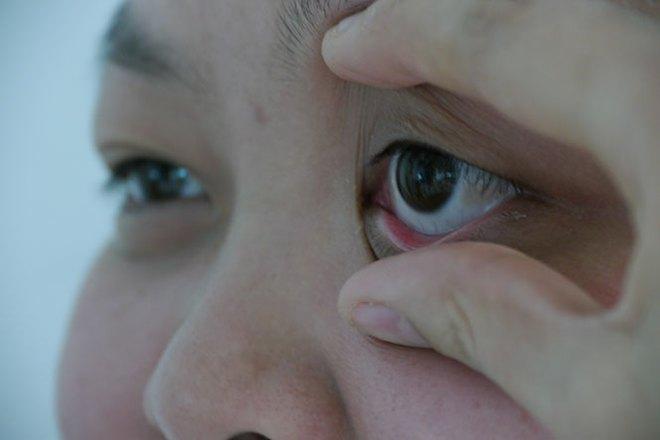 3 biểu hiện bất thường ở đôi mắt ngầm cảnh báo nguy cơ mắc bệnh tiểu đường rất cao mà bạn cần chú ý - ảnh 3