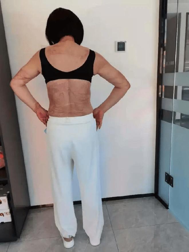 Bị bạn trai cũ cuồng ghen tạt axit và đeo bám suốt 12 năm trời, người phụ nữ suýt bị đâm kim tiêm chứa HIV vào người đã có màn lật kèo đỉnh cao - ảnh 4
