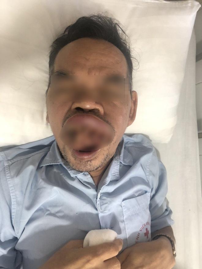 Hà Nội: Trì hoãn điều trị do Covid-19, người đàn ông ung thư bị biến dạng khuôn mặt - Ảnh 1.