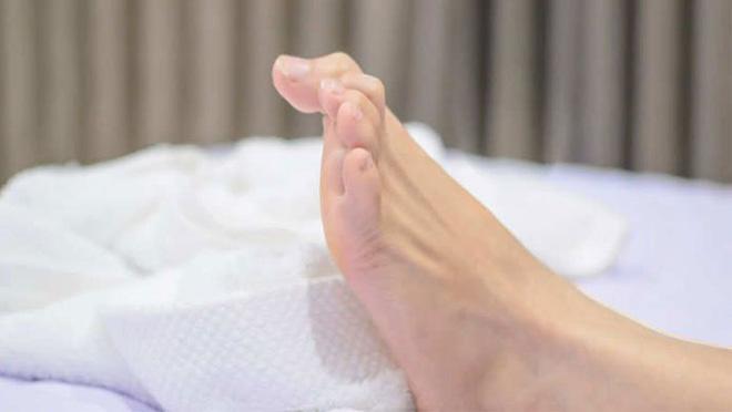 4 hiện tượng bất thường xuất hiện ở chân là dấu hiệu cảnh báo mỡ máu cao mà bạn không nên chủ quan bỏ qua - Ảnh 2.