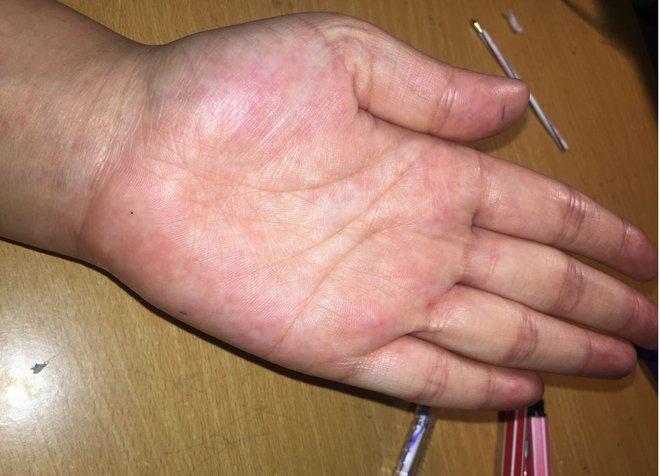 Người có gan kém thường có 4 biểu hiện bất thường ở bàn tay, nếu không có thì gan vẫn rất khỏe mạnh - ảnh 1
