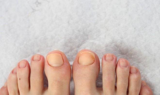 Nếu có 3 biểu hiện bất thường xuất hiện ở bàn chân, bạn nên cẩn thận với nguy cơ ung thư gan đang rình rập - ảnh 1