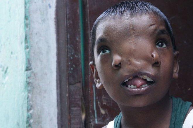 Bé gái có 2 mũi trên gương mặt dị dạng nhưng được cả vùng yêu mến, có được mời cũng không phẫu thuật thẩm mỹ vì lý do thú vị - ảnh 1