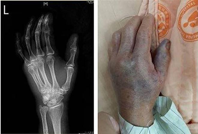 Người phụ nữ bị vi khuẩn ăn cụt bàn tay chỉ sau vài giờ từ vết xước do vảy cá gây ra, bác sĩ đưa ra 6 lời khuyên để ngăn ngừa bị nhiễm bệnh - ảnh 1