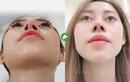 Nâng mũi sụn sườn Fascia: Xu hướng thẩm mỹ mũi được nhiều hot girl, TikToker lựa chọn