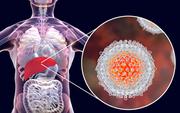 1⁄6 bệnh nhân ung thư có liên quan đến viêm: Nếu gặp tình trạng viêm ở 3 bộ phận này, tuyệt đối đừng chủ quan