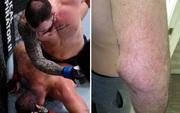 Nhà cựu vô địch MMA bỗng phải nhận trận thua thất vọng, nhiều người trách móc cho đến khi nhìn thấy chấn thương kinh hoàng trên tay anh này