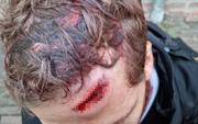 Đến muộn giờ thi đấu, fan đội bóng Đức bị cảnh sát ở Hà Lan thả chó nghiệp vụ cắn nhập viện