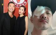 Diễn viên phim Dốc Tình - tri kỷ của Hà Tăng bị chấn thương nghiêm trọng, cả dàn sao Việt đồng loạt lo lắng!