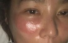 Mỹ nữ xứ Hàn bị bỏng rát mặt chỉ vì một lần đắp mặt nạ qua đêm: Lời cảnh báo thói quen làm đẹp chị em cần chấn chỉnh!