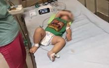 Gia đình ở Sóc Sơn mất 3 đứa con trong 7 tháng, trong đó 2 bé có liên quan tới vi khuẩn gây hoại tử Whitmore