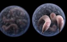 """Loại vi khuẩn gây bệnh nguy hiểm """"ẩn nấp"""" trong các bể bơi và đây là cách phòng tránh"""