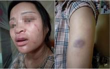 """Mẹ thai phụ 8 tháng bị chồng đánh dã man vì mua giày 135 ngàn: """"Cháu ngoại tôi sắp chào đời, nó cần có bố bên cạnh"""""""