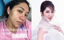 Hoa hậu Đặng Thu Thảo tự khoe ảnh nhan sắc tàn phá và mụn mọc chi chít sởn da gà vì bầu bí, thái độ tích cực thật đáng khâm phục!