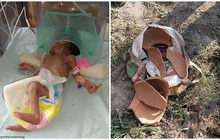 Bị chôn cất gần 1 mét dưới đất, bé gái 5 ngày tuổi vẫn sống sót thần kỳ trong sự ngỡ ngàng của bố mẹ