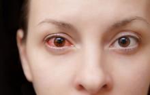 Chú ý: Loạt bệnh nguy hiểm mang biểu hiện ngứa mắt khi mùa thu đến