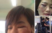 Vụ nữ nhân viên xe buýt bị nhóm thanh niên hành hung: 4 thanh niên đều say rượu
