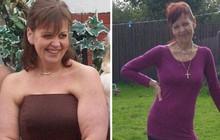 Vật lộn để ăn sau khi phẫu thuật cắt dạ dày khiến người phụ nữ qua đời sau 1 tuần nhập viện