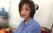 """Nữ phụ xe buýt sợ hãi và tổn thương sau khi bị đánh hội đồng đến nhập viện: """"Bọn họ xuống xe còn bảo đánh thế vẫn còn nhẹ"""""""
