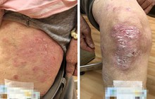 Người phụ nữ mắc bệnh vảy nến nghe lời khuyên tắm tinh dầu dưỡng da, sau 3 tháng hậu quả khôn lường