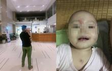 Cho con 14 tháng đi học buổi đầu tiên, chiều bố mẹ đón về hoảng hồn thấy con bị bầm tím rách mặt, tinh thần hoảng loạn