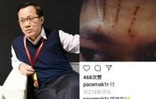Trác Vỹ tiết lộ Lý Tiểu Lộ bị lừa 42 tỷ đồng, PGone đăng ảnh đầu chảy máu vì không chịu được áp lực?