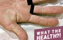 Tay nổi vân lòng bò: dấu hiệu lạ ở bàn tay cảnh báo nguy cơ mắc bệnh ung thư phổi mà bạn không nên coi thường