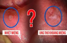 4 dấu hiệu loét miệng ngầm cảnh báo bệnh ung thư đang âm thầm phát triển