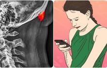 Hội chứng kỳ lạ do tư thế rất nhiều người trong chúng ta đang mắc phải trong thời đại smartphone ngập tràn thế giới
