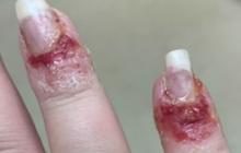 Sơn móng tay bằng bột nhúng nails, cô gái bị chảy máu, mưng mủ kinh hoàng